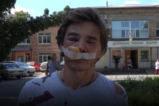 У Вишневому побили активіста, який боровся проти забудови зеленої зони
