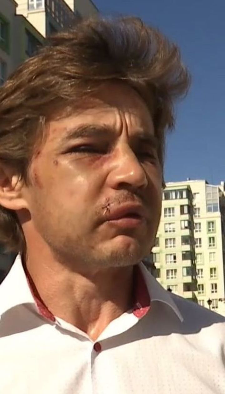 В Вишневом жестоко избили активиста, который борется с незаконными застройками