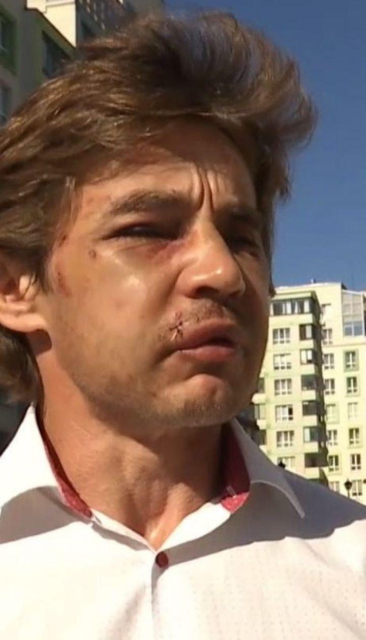У Вишневому жорстоко побили активіста, який бореться з незаконними забудовами
