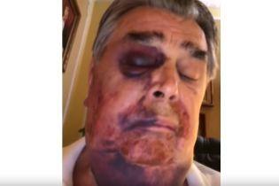 Колишнього прем'єр-міністра Криму Франчука жорстоко побили та пограбували у власному будинку