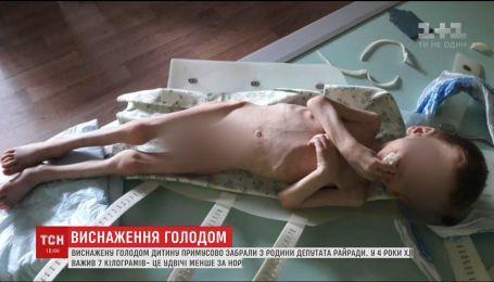 На Кіровоградщині із сім'ї депутата райради забрали виснажене голодом дитя