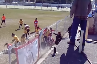 Аргентинські футболістки влаштували криваву бійку, якій би позаздрили навіть боксери