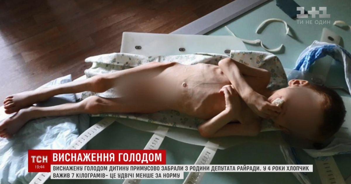 Як із концтабору: на Кіровоградщині депутат ледве не заморив голодом власне дитя