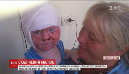 На Кіровоградщині у будинку дитини обпекли окропом 1,5-річного хлопчика