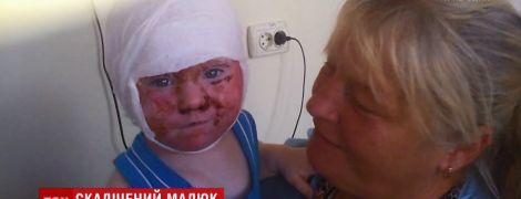 На Кировоградщине в доме ребенка воспитательница вылила кипяток на полуторагодовалого малыша