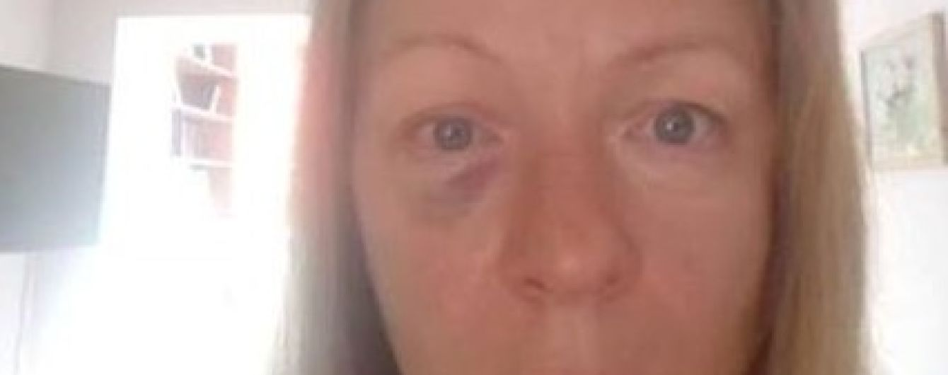 Киевский актер избил жену и выложил фото в Facebook. За дело взялись народные депутаты
