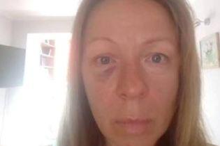 Київський актор побив жінку й виклав фото у Facebook. За справу взялися народні депутати
