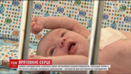 ТСН покажет историю младенца, который выжил с серьезной патологией сердца