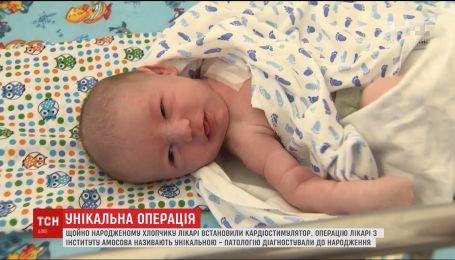 Хлопчик, який вижив. Лікарі поставили кардіостимулятор дитині через 6 годин після народження
