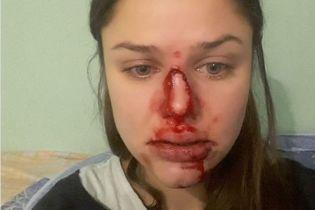 Київський психолог публічно заявила про домашнє насильство з боку чоловіка. Луценко чекає на заяву