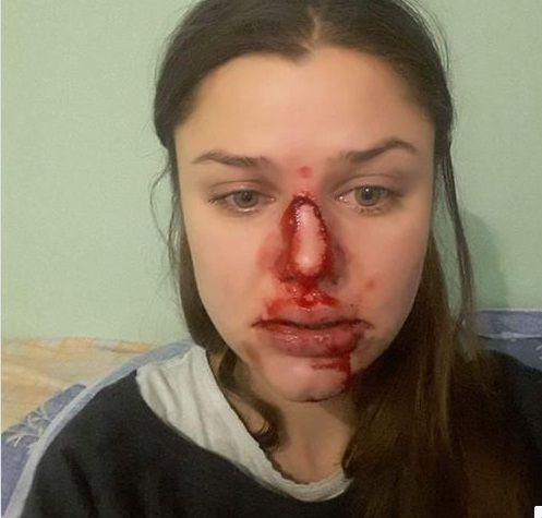 Лілія Шевцова домашнє насилля