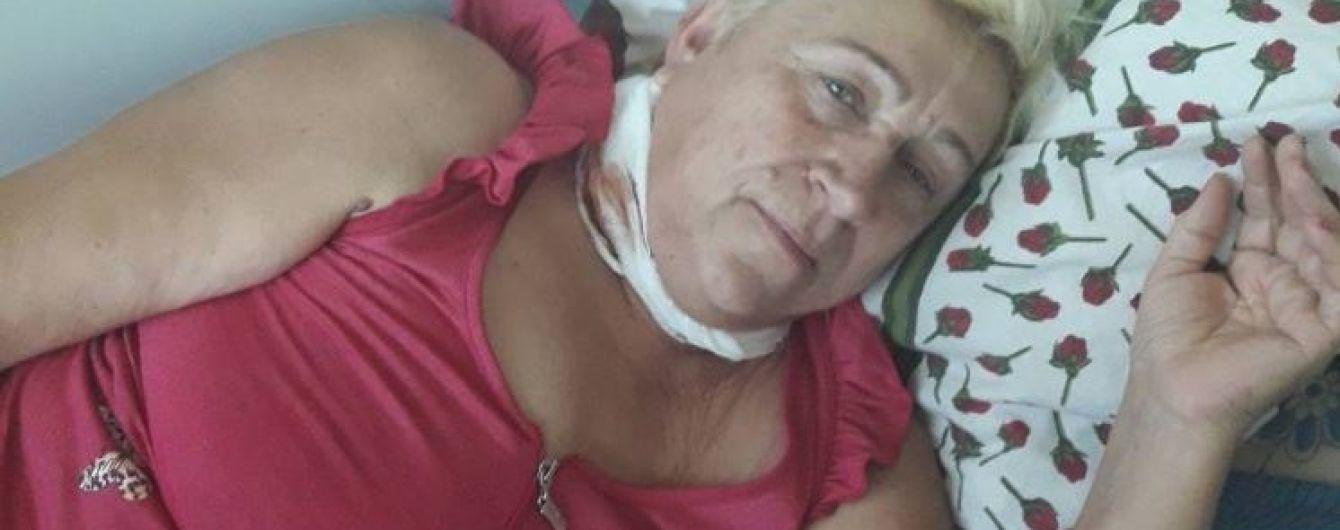 Рак шкіри уразив Валентину і їй потрібна допомога