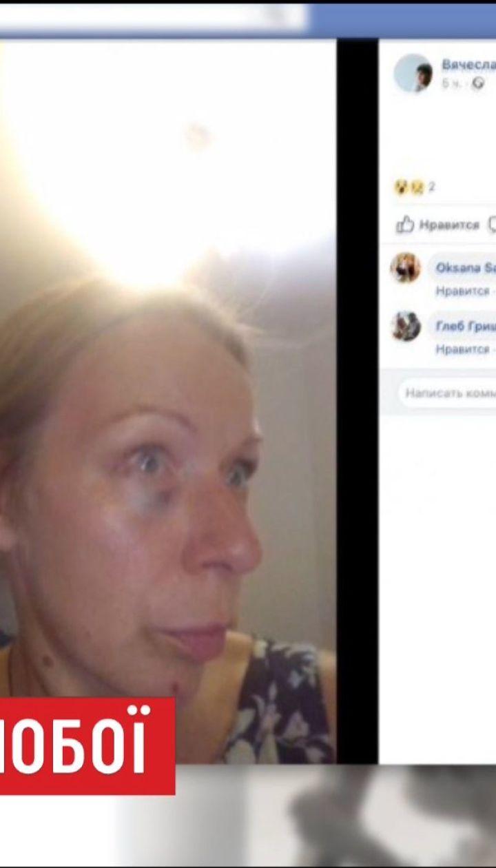 """Актор серіалу """"Свати-6"""" жорстоко познущався з дружини і виклав її фото в Інтернет"""