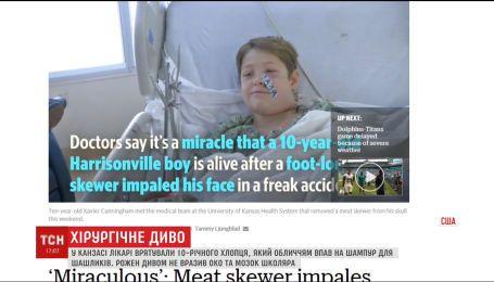 Хирургическое чудо. В Канзасе спасли 10-летнего мальчика, которому шампур пробил голову