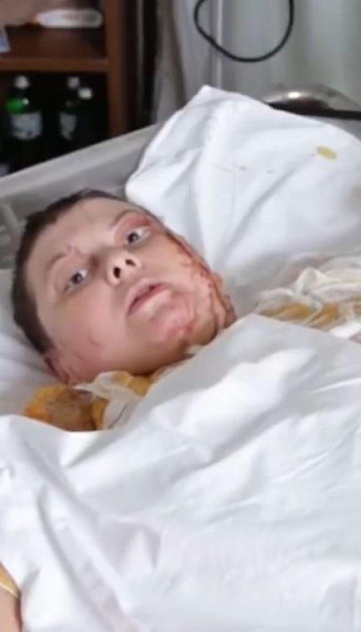 Облита кислотою активістка Катерина Гандзюк записала відеозвернення