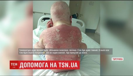 Півжиття з хворобою: 5-річний Владик із Хмельниччини терміново потребує грошей на лікування