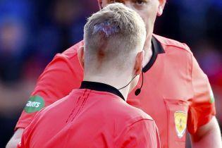 У Шотландії футбольні фанати розбили судді голову просто під час матчу