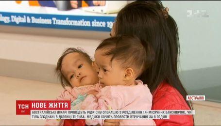 Австралійські лікарі проведуть рідкісну операцію з розділення сіамських близнючок