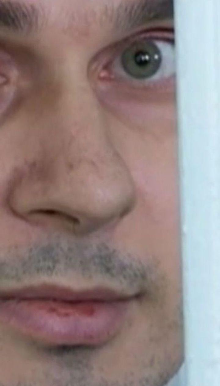 Через голодування у Сенцова з'явилася серцева недостатність та проблеми з печінкою