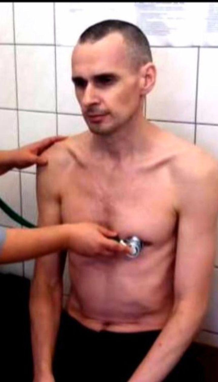 Сенцов вынужден прекратить голодовку из-за критического состояния здоровья