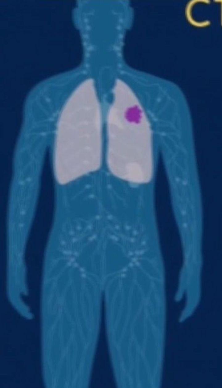 У Дніпрі кілька десятків онкохворих беруть участь у дослідженнях нової методики лікування раку