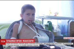 На Житомирщине после удара шлагбаумом ребенок в тяжелом состоянии попала в больницу