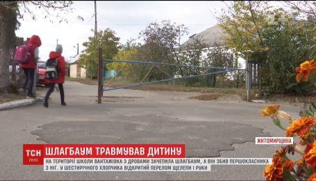 В Житомирской области первоклассник попал в больницу после удара шлагбаумом на территории школы
