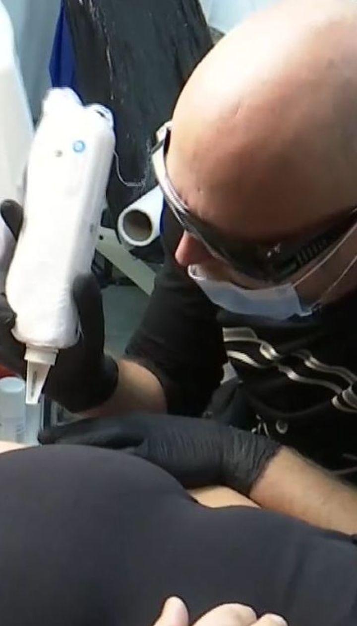 Якщо смаки змінились, а символізм малюнків більше не радує: як безпечно вивести татуювання