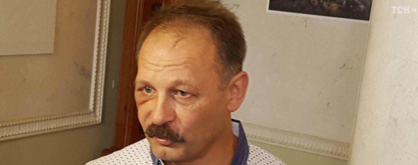 """Матюкливий Барна проігнорував засідання комітету ВР щодо образи журналіста """"1+1"""""""