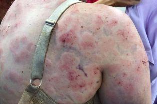 Ховала від ударів дитя. Героїчна авcтралійка показала понівечене страшенним градом тіло й обличчя