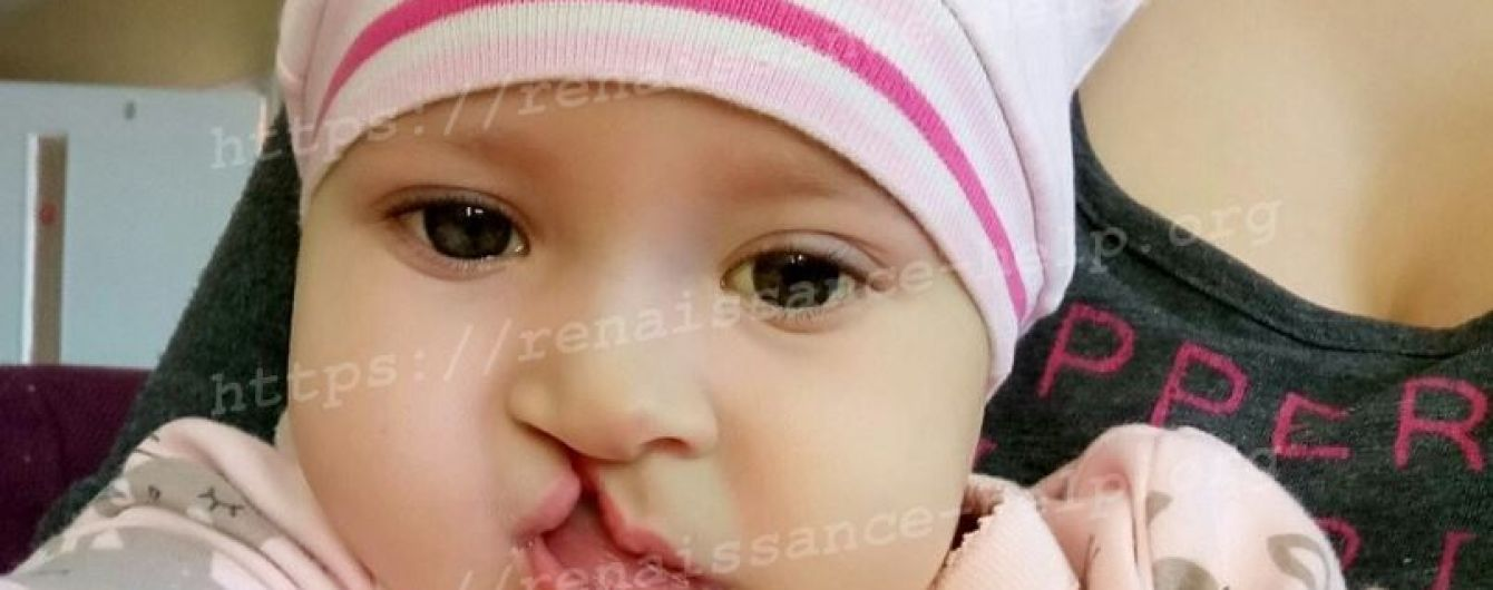 Вероничка родилась с многими пороками и теперь требует ряда операций