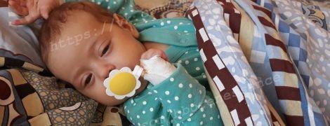 2-місячна Міланка потребує негайної трансплантацію печінки