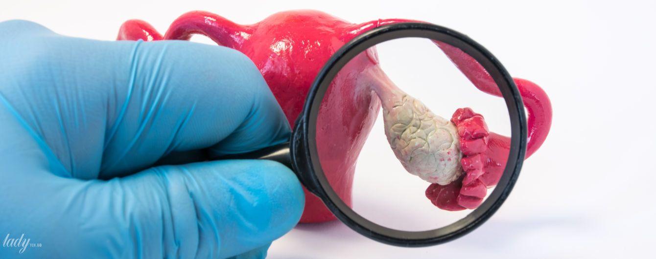 Поликистоз яичников: симптомы, причины и последствия