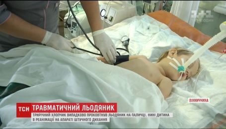 3-річний хлопчик перебуває у комі після того, як проковтнув льодяник разом з паличкою