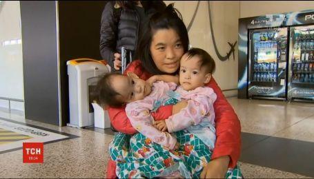 Австралійські хірурги успішно розділили сіамських близнючок