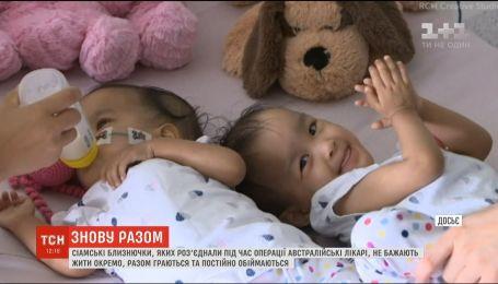 Нерозлучні сестрички: сіамські близнючки не бажають жити окремо одна від одної