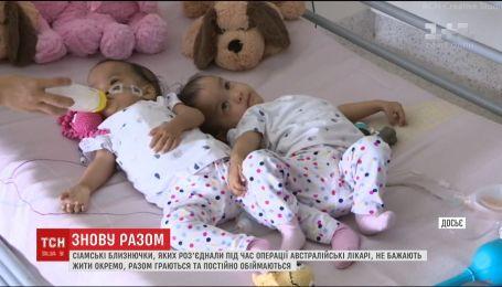 Успішно роз'єднані сіамські близнючки не можуть жити окремо