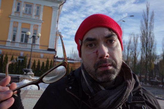 """На """"трансмарші"""" у Києві радикали побили іноземного журналіста"""