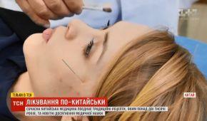 Голки в голову і щурячі екскременти: китайська медицина шокує засобами лікування
