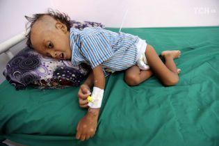 У Ємені від голоду померли майже 85 тисяч дітей