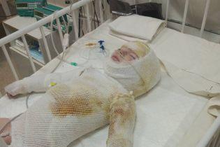 Зрители ТСН помогли собрать достаточно средств на лечение обожженного Ярославчика