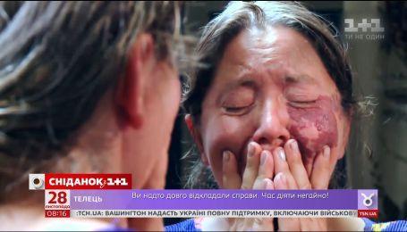 Верните мне красоту: перевоплощение Оксаны Шевчун