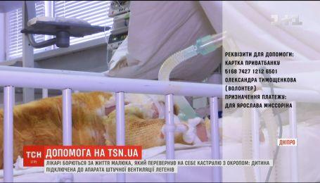 В Днепре борются за жизнь малыша, который перевернул на себя кастрюлю с кипятком
