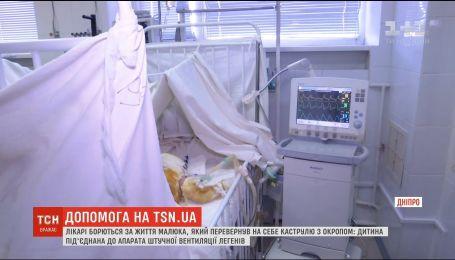 Мальчик, который опрокинул на себя кастрюлю с кипятком, уже перенес три операции