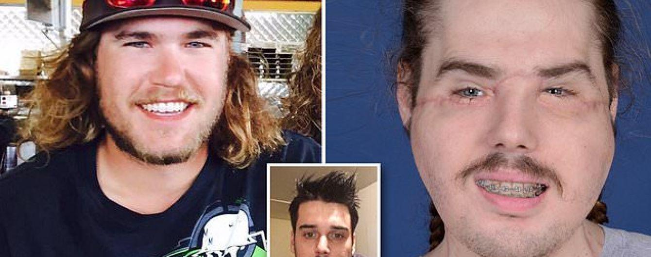 Американець спотворив собі обличчя пострілом. Йому пересадили нове і показали, який має вигляд зараз