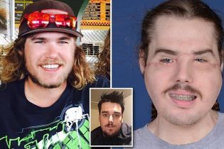 Американец обезобразил себе лицо выстрелом. Ему пересадили новое и показали, как он выглядит сейчас