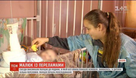 У Дніпрі небайдужі сусіди врятували немовля із переламаними кістками