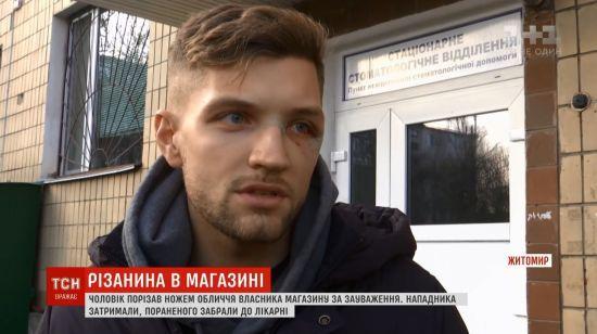 Кривава бійка в Житомирі: очевидці розповіли, чому покупець бутика почав вимахувати ножем