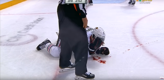 Хокеїст залив майданчик кров'ю під час матчу НХЛ