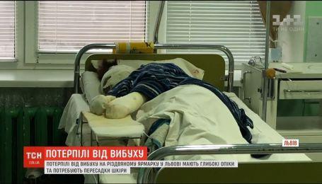 Пострадавшие во время пожара на рождественской ярмарке во Львове нуждаются в пересадке кожи